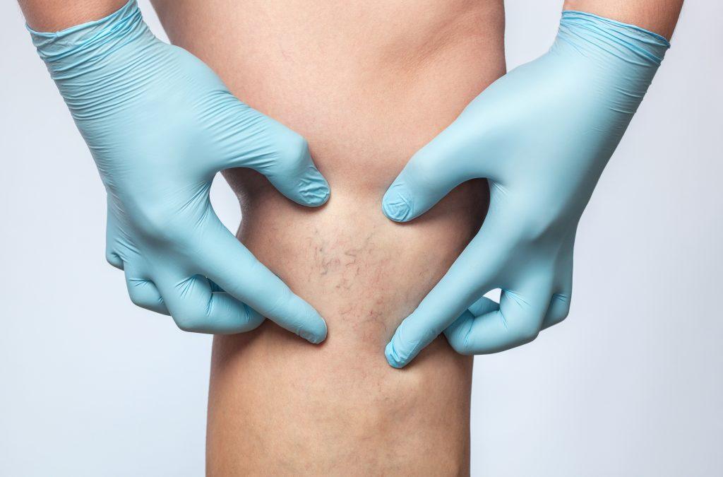 Cirurgia Vascular CAL Clínica